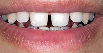 Gaps Between Teeth